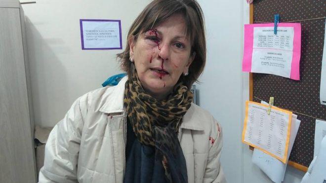 Professora agredida por aluno denuncia mensagens de ódio: 'Já atingiram meu olho, mas não vão me calar'